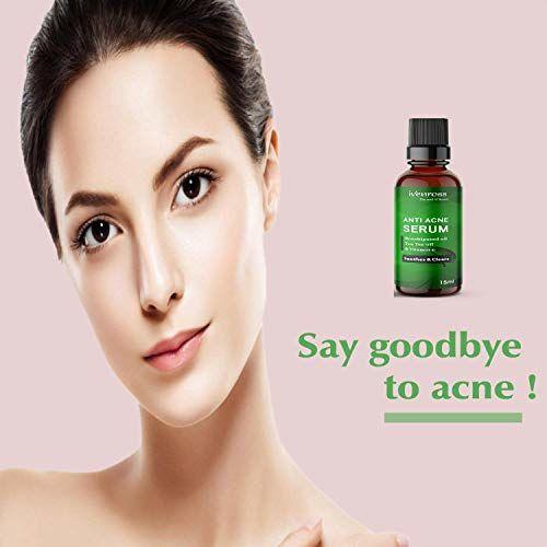 Ivenross Anti Acne Serum Soothes & Clears Acne & Dark Spots | Rosehip & Tea Tree - 15ml